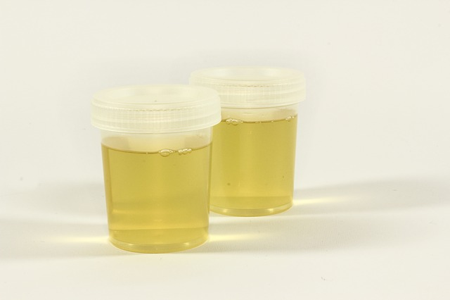 Don't let legal problems come from false positive on CBD and THC urine test