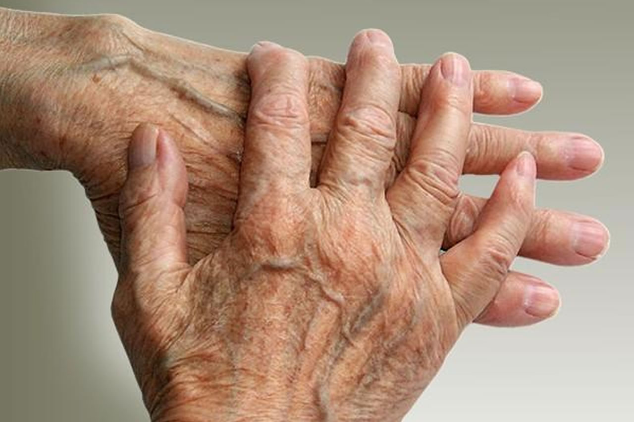 Arthritis pain in your joints such as hands may be alleviated with CBD products