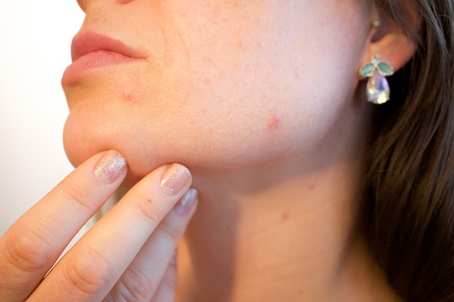 The use of CBD has been shown to be effective with the treatment of acne